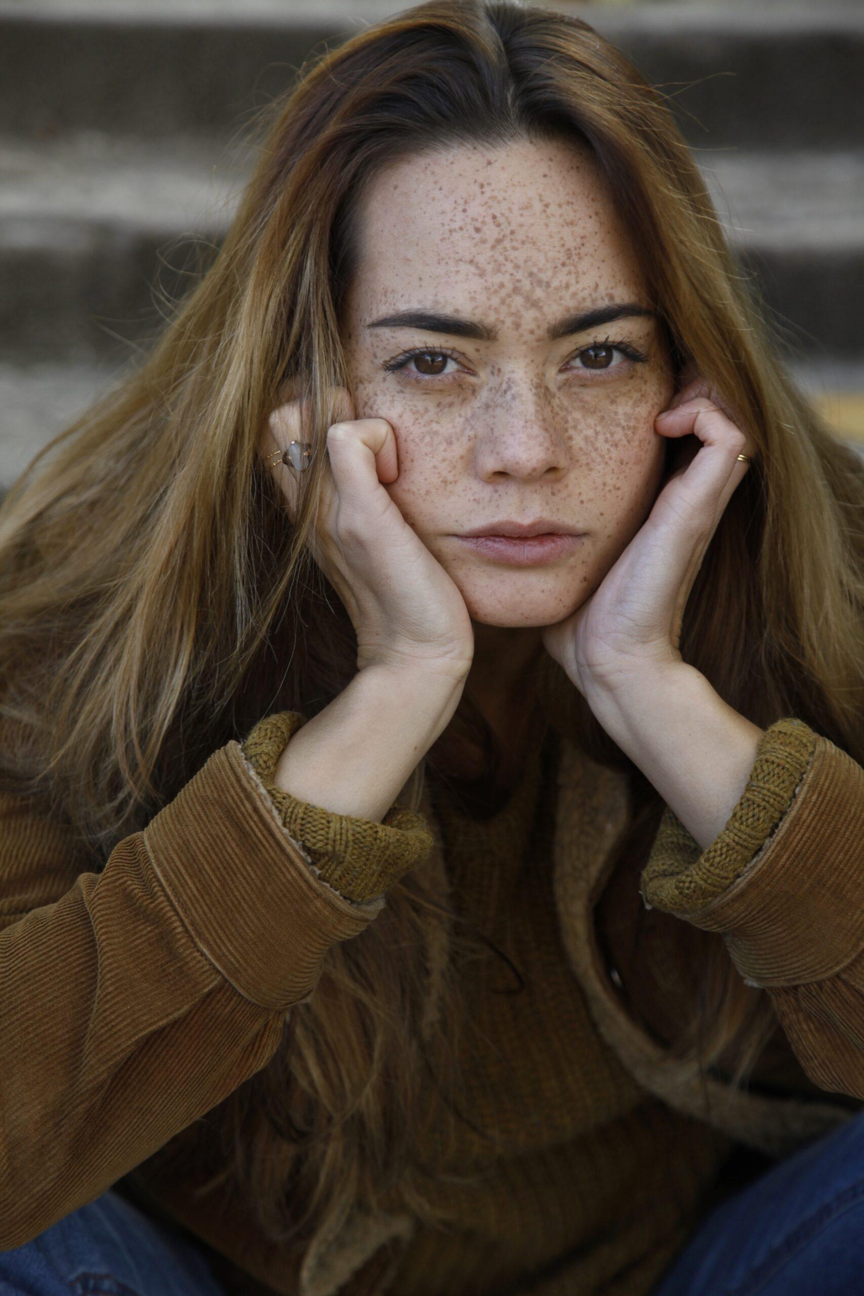Melissa van Beek Model Actrice Sproeten Freckles Nederland Dutch Commercial