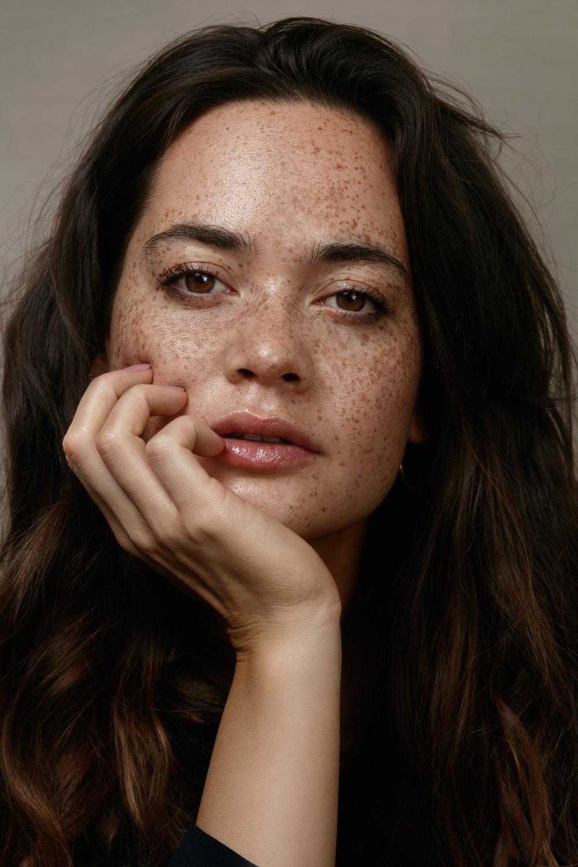 freckles 01 Fotor
